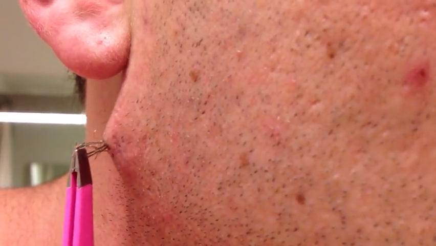 Watch This Man Pull Out The World S Longest Ingrown Hair