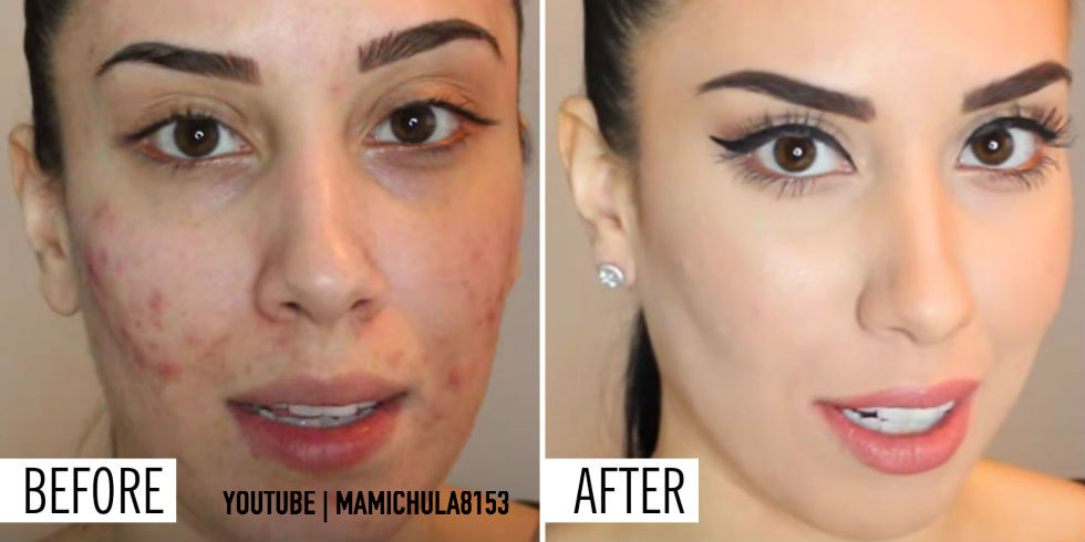 Acne and mature skin