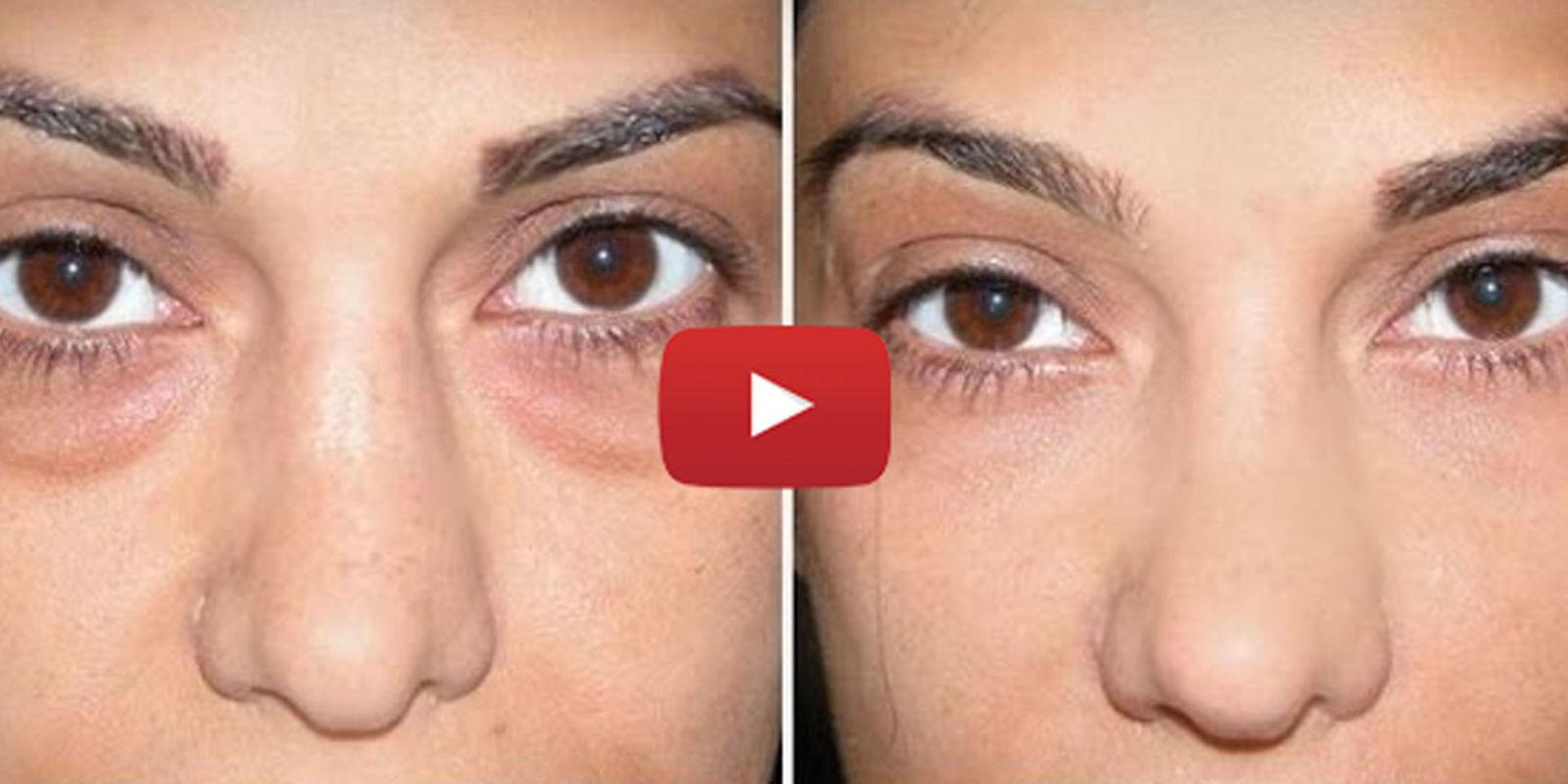 La crema alrededor de los ojos de las arrugas mímicas después de 25 años