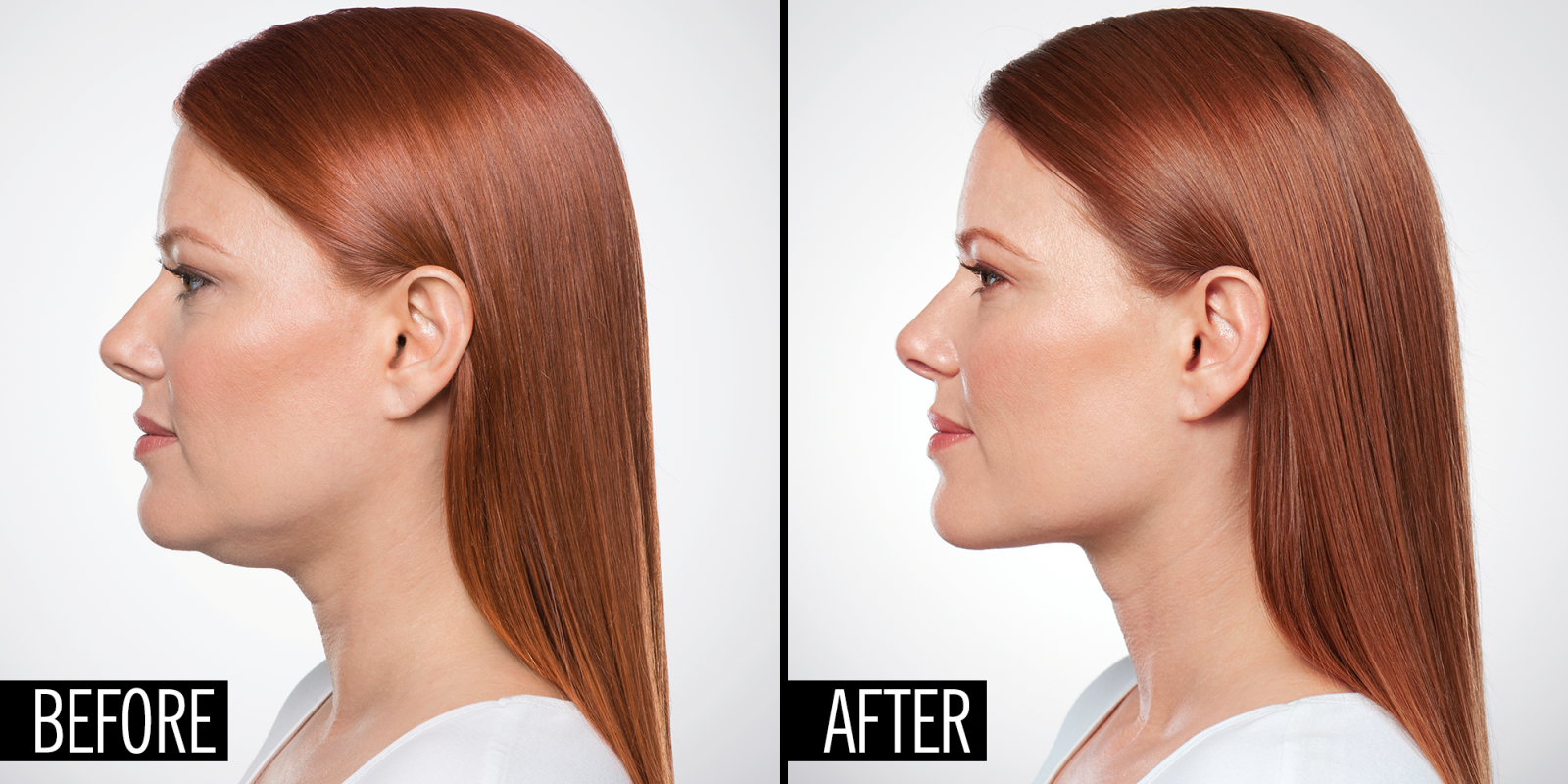 How A Plastic Surgeon Can Eliminate Your Double Chin With