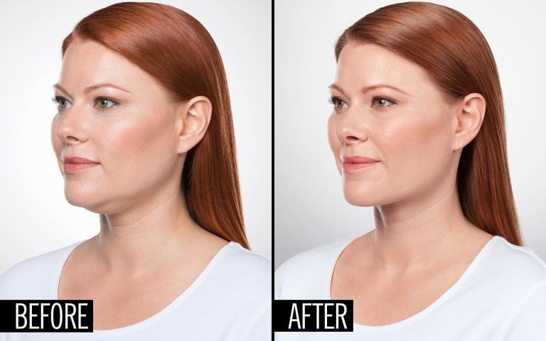 how to eliminate double chin